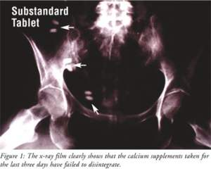 x-ray of undissolved tablets